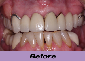 Patient Presented With Decaying PFM Restorations And A Cast Partial Visible Metal Clasps Decayed Teeth Were Replaced Implants On 4 5 9 10