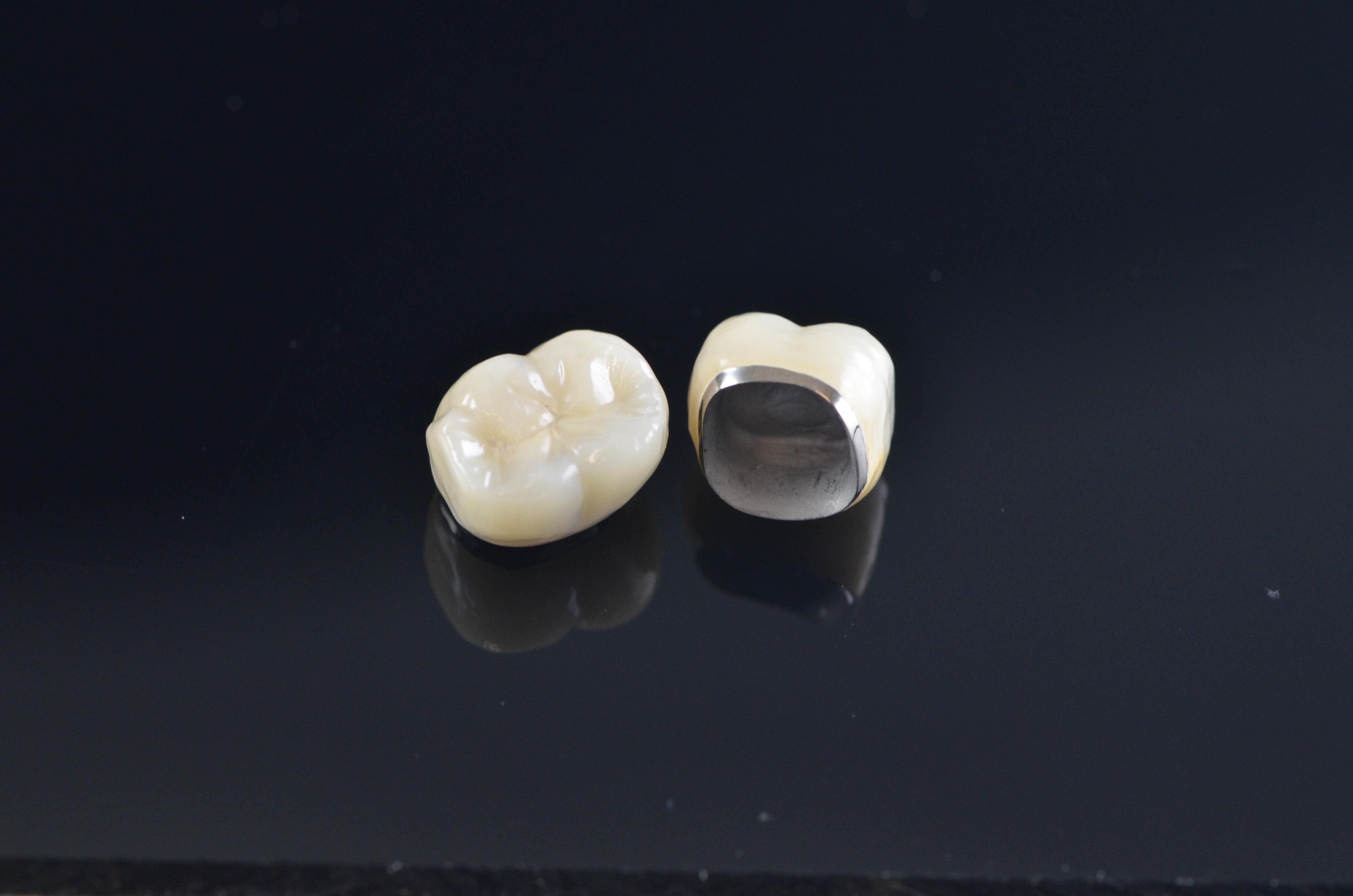 Oral Arts Porcelain Fused To Metal Oral Arts Dental