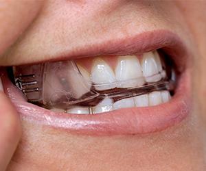 Somnodent 174 Sleep Apnea Device Oral Arts Dental