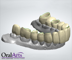 Oral Arts Cad Cam Oral Temp Provisionals Oral Arts
