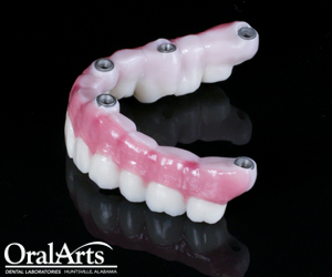 Element Z Screw Retained Hybrid Bridge Oral Arts Dental