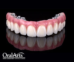 SELECT Screw-Retained Hybrid | Oral Arts Dental ...
