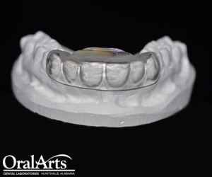 Bitesoft 174 Oral Arts Dental Laboratories Huntsville Al