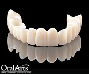 Oral Arts Cad Cam Oral Temp Provisionals Oral Arts