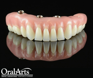 Screw-Retained Hybrid Denture | Oral Arts Dental