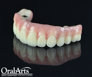 Select Screw Retained Hybrid Oral Arts Dental